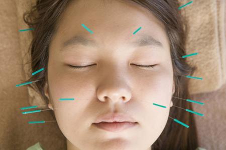 美容鍼(美顔鍼)の画像