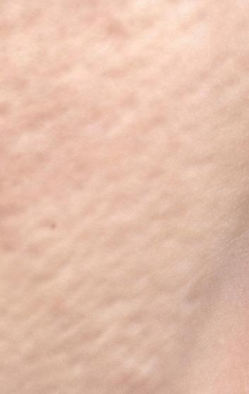 たるみ毛穴の画像