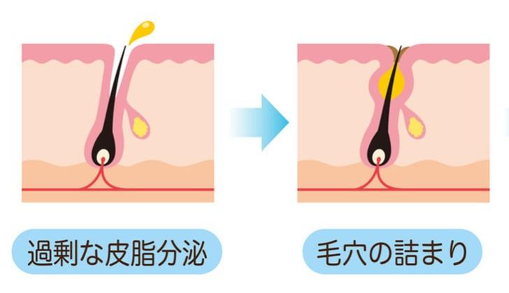 毛穴のたるみの原因の解説画像