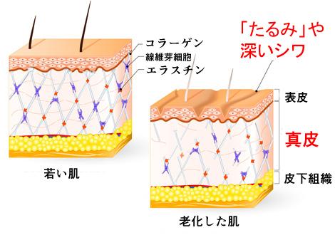 肌の老化の画像