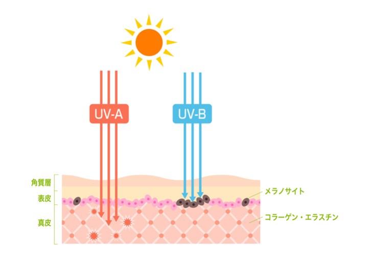 紫外線ダメージの画像