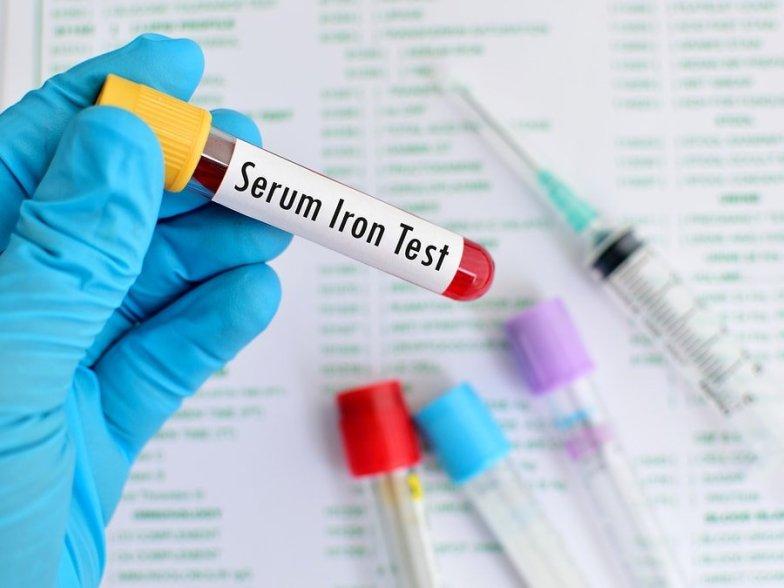 Iron blood test