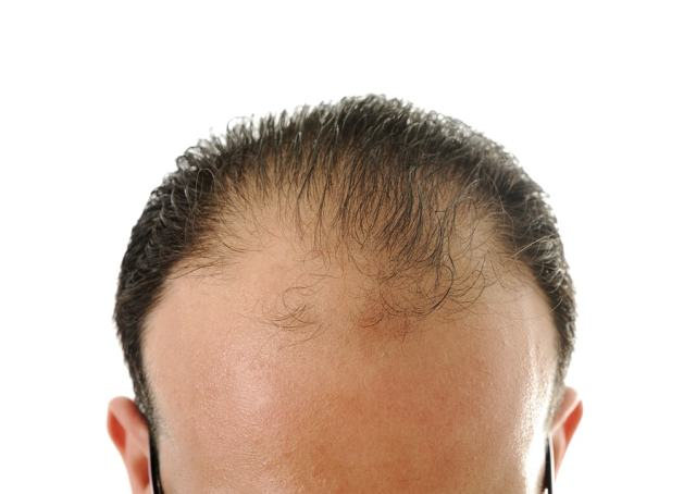 Methylprednisolone May Reduce Hair Loss and Baldness