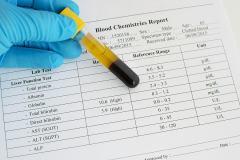 Urobilinogen in Urine: Low & High Levels + Normal Range