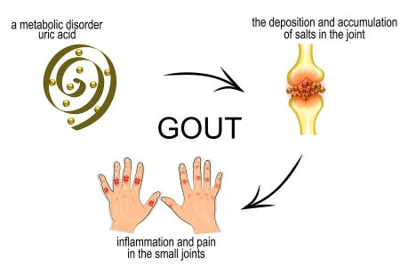 drugs for high uric acid what food should avoid for high uric acid gout symptoms hip