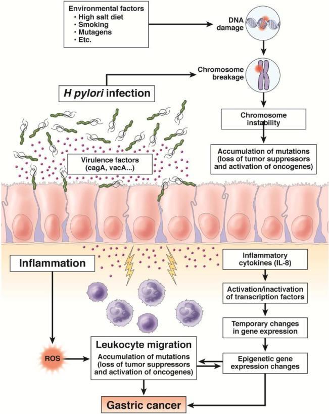 Image Result For H Pylori Cancer Symptoms