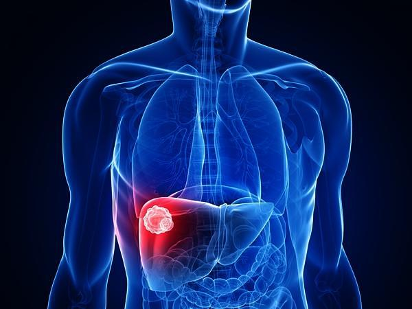 Vitamin D3 prevents progression of Liver Cancer
