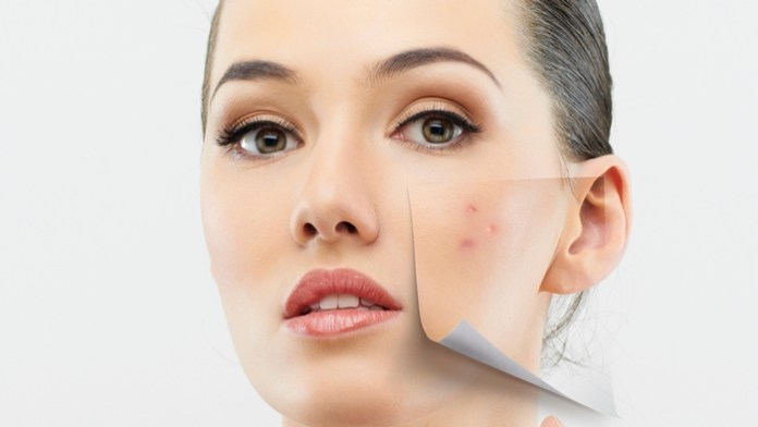 Adult Acne: Causes and Remedies by ultraceuticals.com