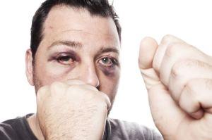 Boxer Black Eye