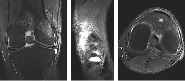MRI Knie coronar