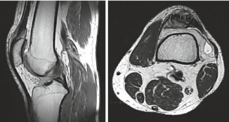 MRI Knie sagittal