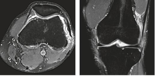 MRI Knie axial