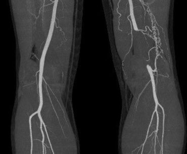 Exercise induced Leg Pain due to Vascular Compression Syndrome