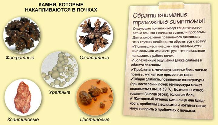 Kung urine urates  Iba pang mga Uraturian Causes