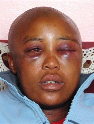 Lésbicas sul-africanas sofrem 'violações corretivas'
