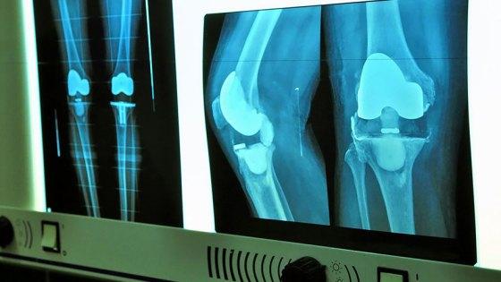 osteoarthritis-pain-imaging