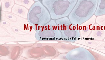 My tryst with colon cancer - Seniors Today