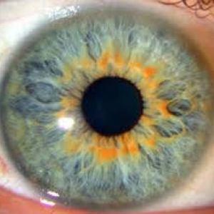 iridologie-1