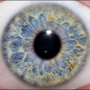 iridologie-2