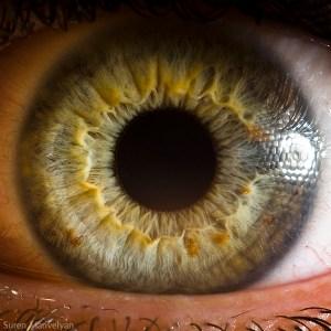 iridologie-4
