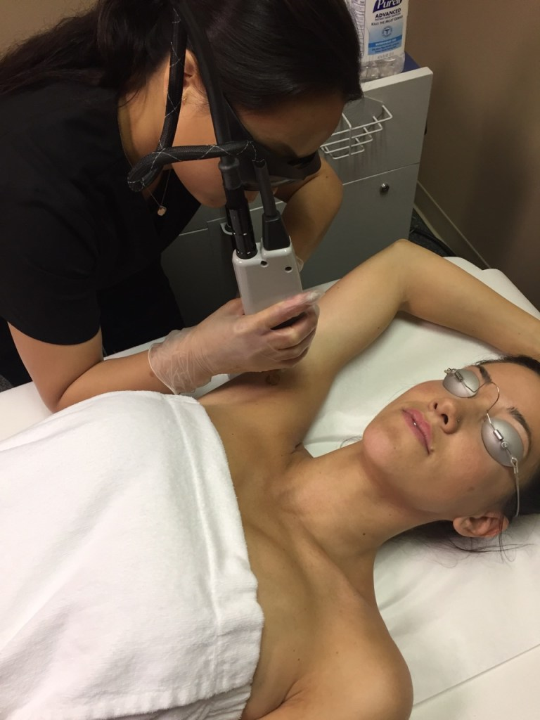 Picture of a patient receiving laser hair removal of the armpit.