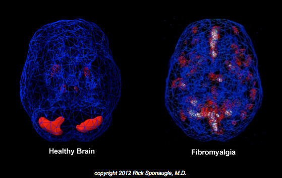 A healthy brain compared to the brain of a patient suffering from Fybromalgia