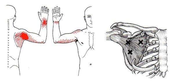 Triggerpoint Reset Behandeling Sensiz