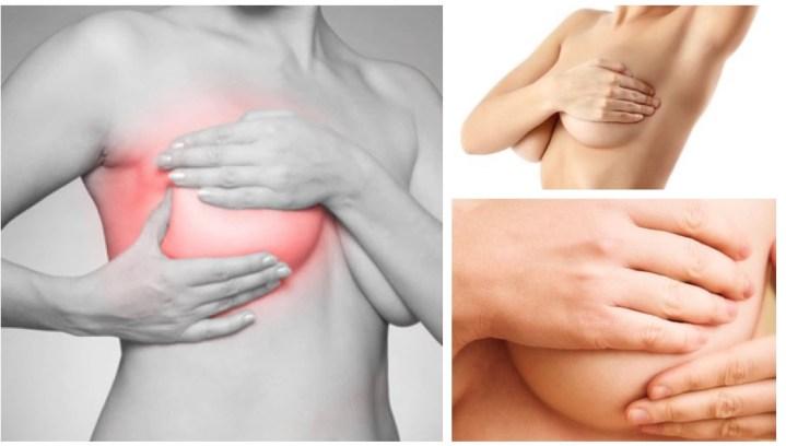 Mastose, comment apaiser naturellement les seins douloureux  ?