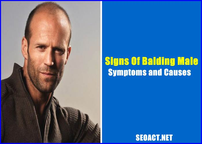Signs Of Balding Male