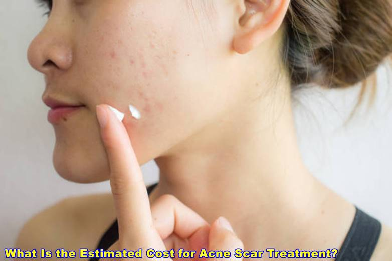 What Is the Estimated Cost for Acne Scar Treatment?