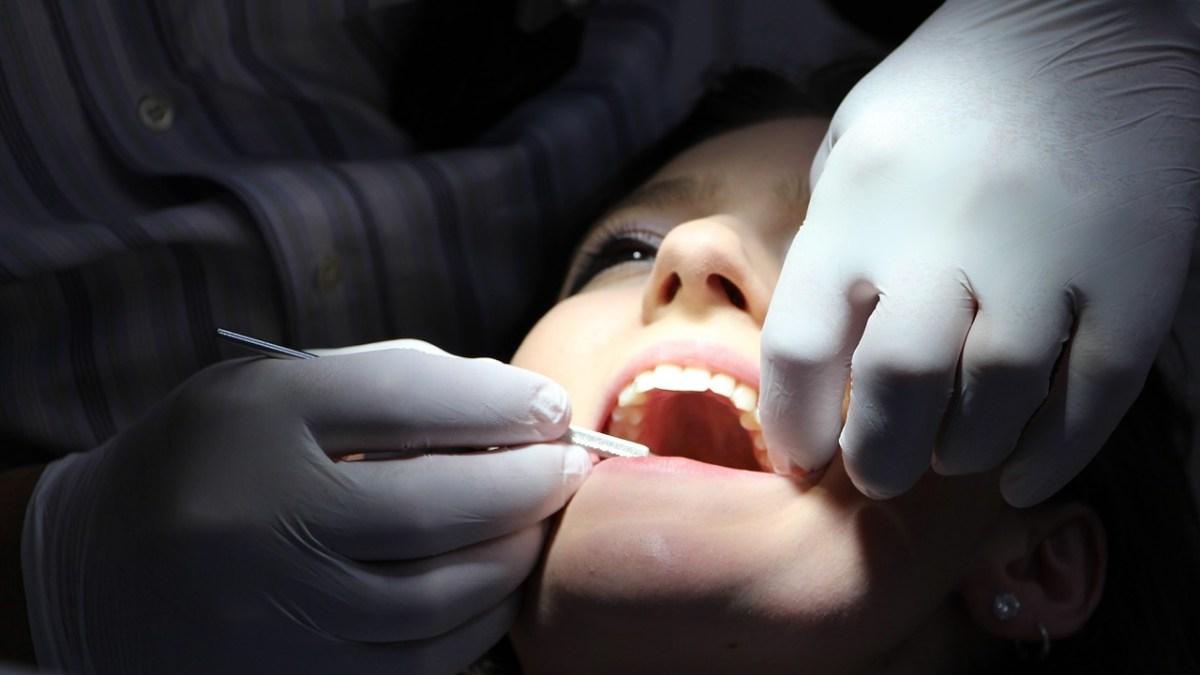 Er huller i tænderne et problem skabt af vores moderne verden?