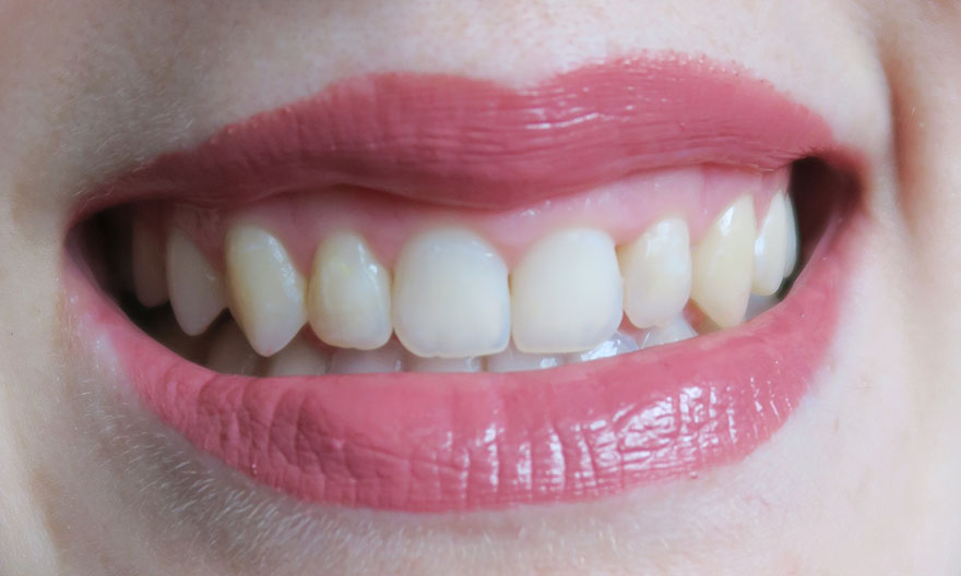 Aparat dentar - rezultat si impresii finale