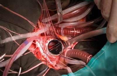 Жизнь после операции на сердце замена клапана — Сердце