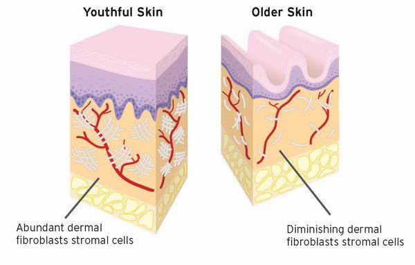 fraxel, laser resurfacing, aging skin