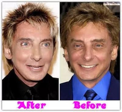 barry manilow plastic surgery