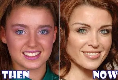 danii minogue plastic surgery