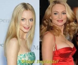 heather graham plastic surgery