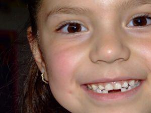 Dientes de tiburón, los dientes de leche que no caen