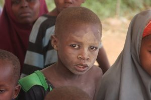 Lodwar Faces in need