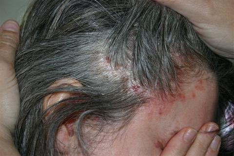 TCM cleared my psoriasis, including scalp - Inspire