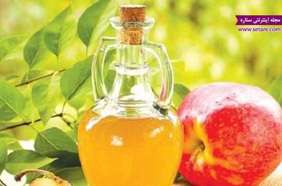 درمان واریس پا ، سرکه سیب ، بیماری واریس