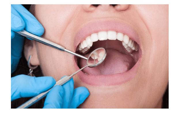 Prevención, clave en salud bucal: IMSS
