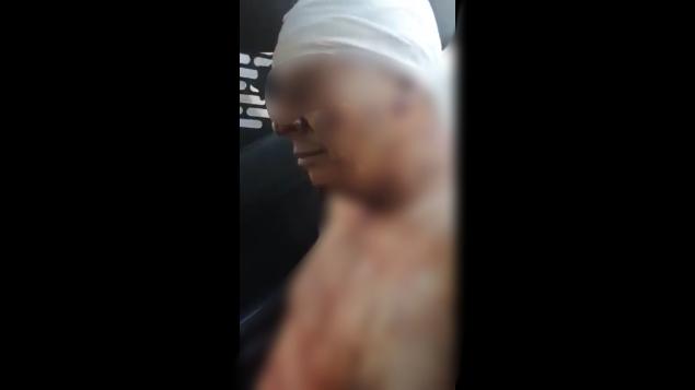 #Video Escalofriante el relato del sujeto que le arranco la piel a su esposa