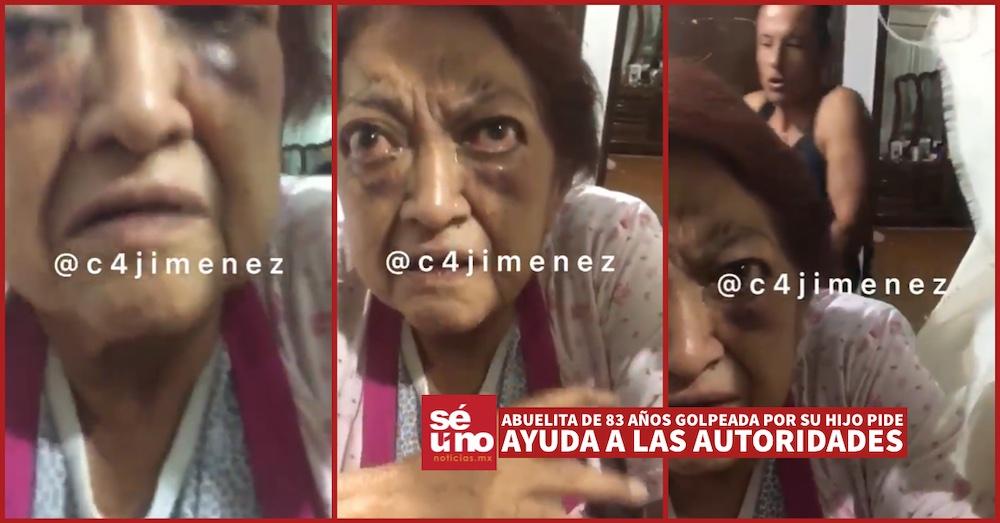 #Video Abuelita de 83 años golpeada por su hijo pide ayuda a las autoridades