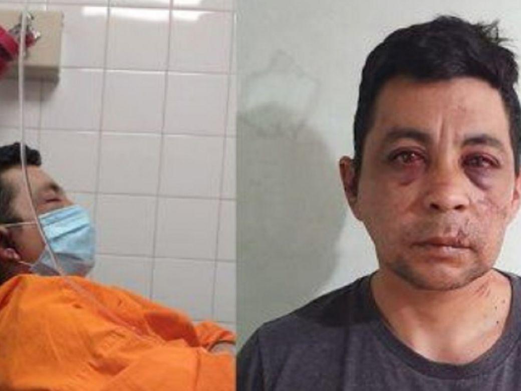 Muere enfermero atacado por sus vecinos tras contagiarse de COVID-19 en Argentina