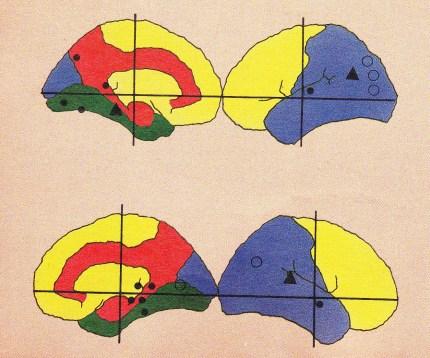 cerebro, estudios