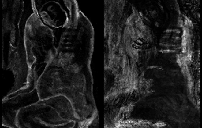 Ο πίνακας που κρυβόταν πίσω από τη «Δυστυχισμένη Γυναίκα» του Πικάσο