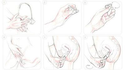 Como usar las copas menstruales