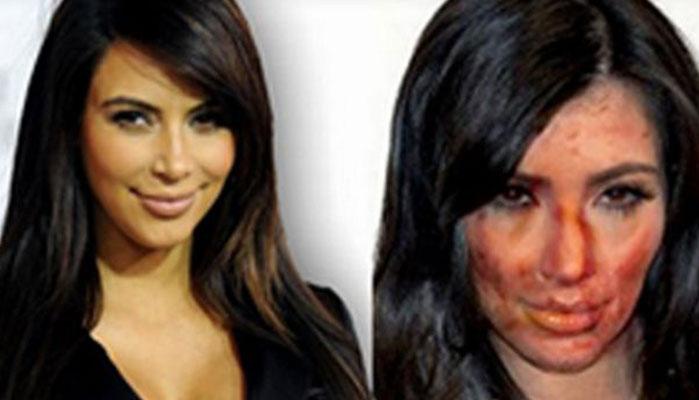 Kim Kardashian's Face on Meth... and Other News!
