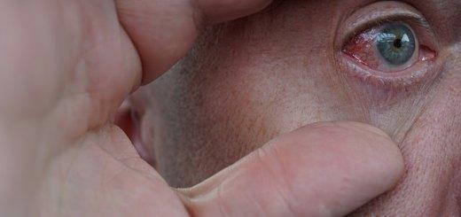 remedii-naturiste-care-combat-inflamatia-ochilor